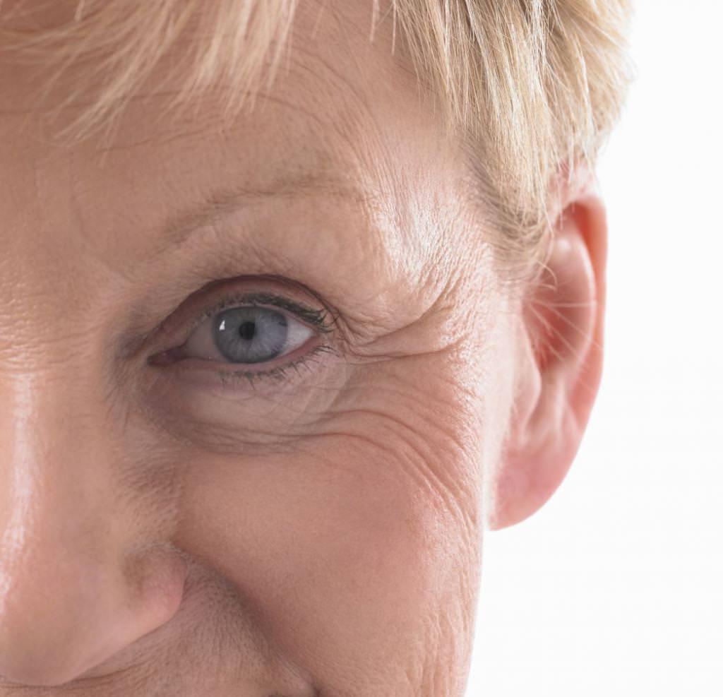 Гусячі лапки навколо очей: причини появи і способи позбутися