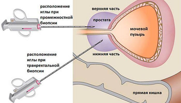 Біопсія простати: підготовка, як проводиться, наслідки процедури, відгуки