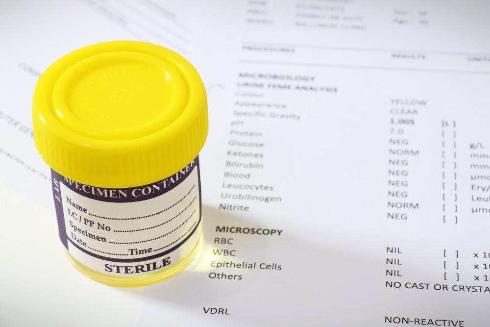 Печіння при сечовипусканні: причини і лікування