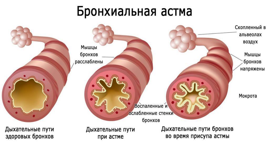 Класифікація бронхіальної астми: види, форми та особливості діагностики