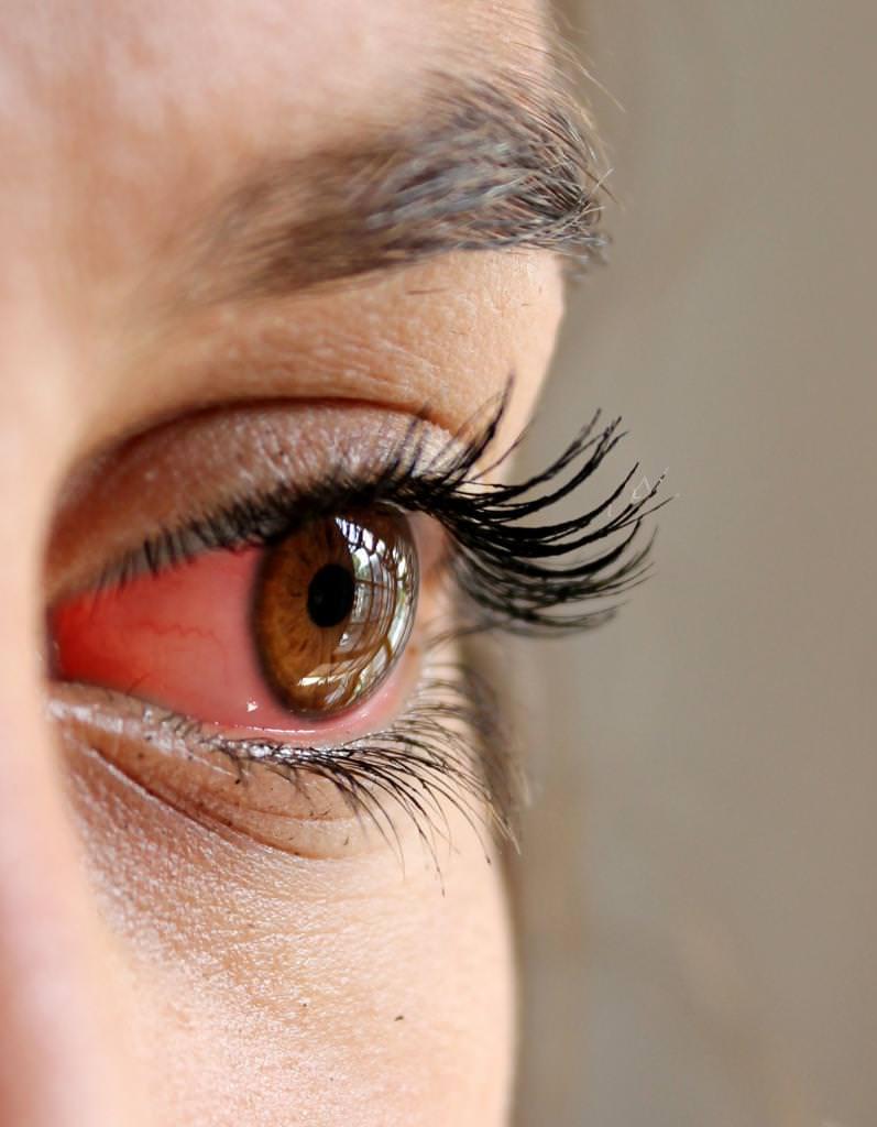 Алергічний конюнктивіт: симптоми, причини та особливості лікування