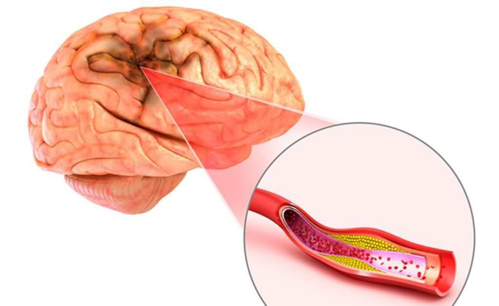 Церебральна ішемія: ступеня, лікування, наслідки