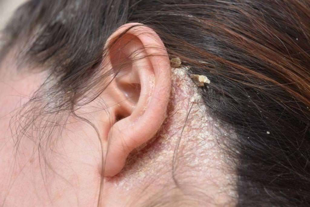 Лупа у вухах: фото, причини і лікування