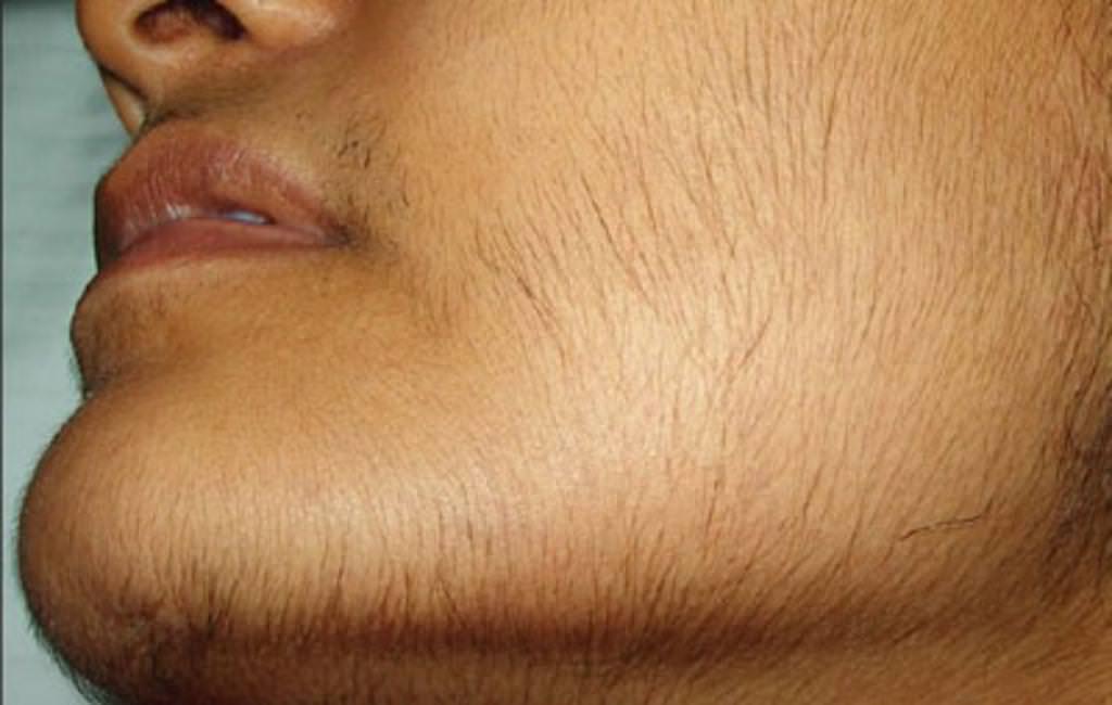 Чому росте волосся на обличчі у жінок? Причини і лікування